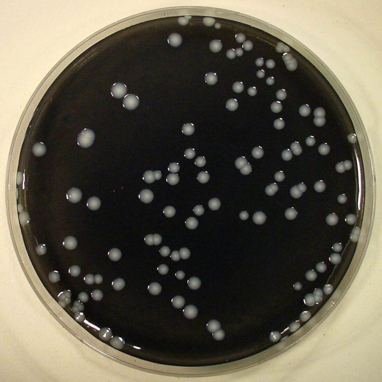 Legionellabeheersing in de tropen